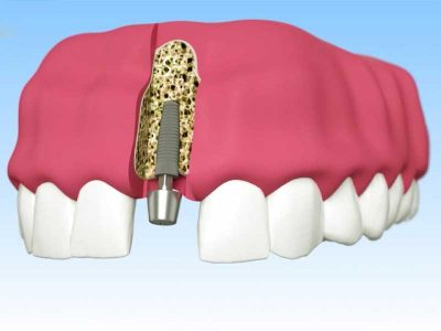 Implantate.jpg